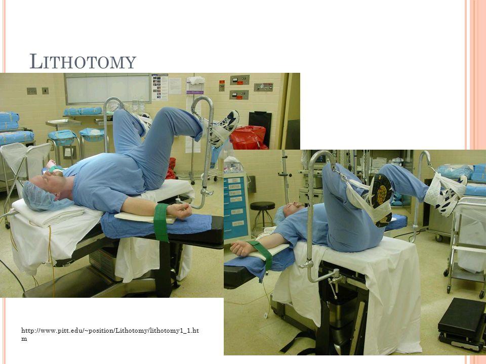 L ITHOTOMY http://www.pitt.edu/~position/Lithotomy/lithotomy1_1.ht m