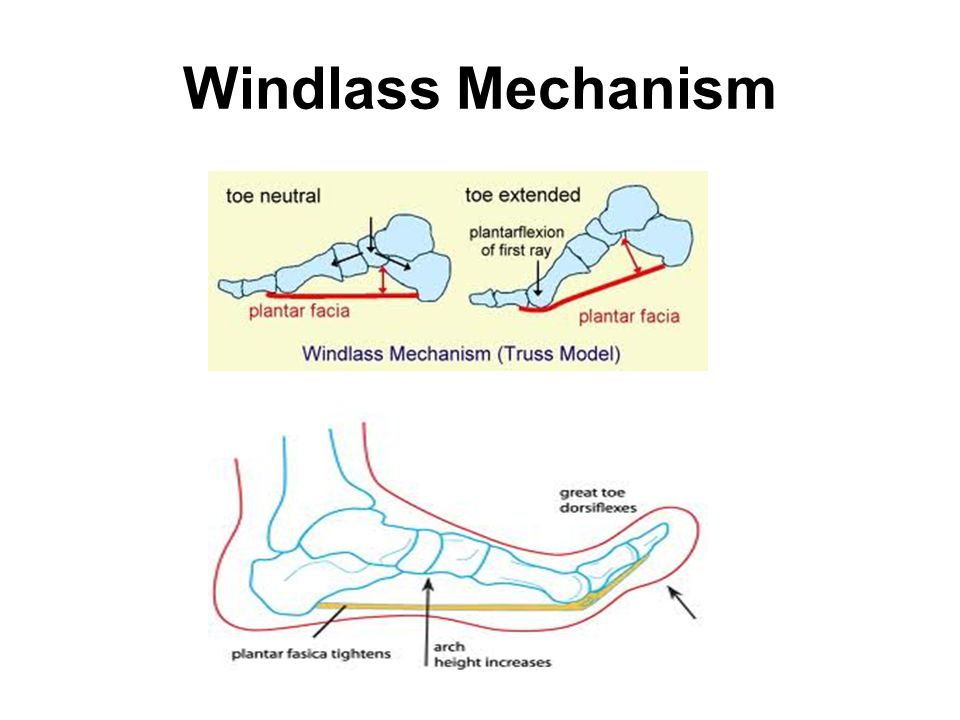 Windlass Mechanism