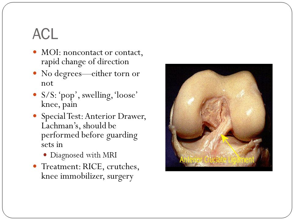 ACL MOI: noncontact or contact, rapid change of direction No degrees—either torn or not S/S: 'pop', swelling, 'loose' knee, pain Special Test: Anterio