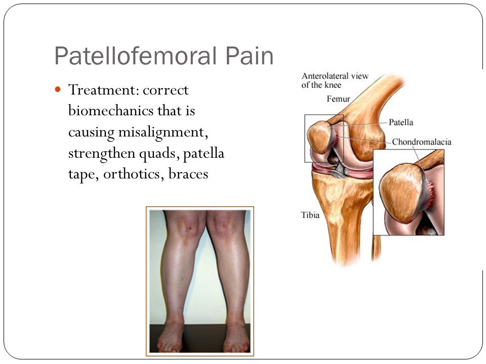 Patellofemoral Pain Treatment: correct biomechanics that is causing misalignment, strengthen quads, patella tape, orthotics, braces