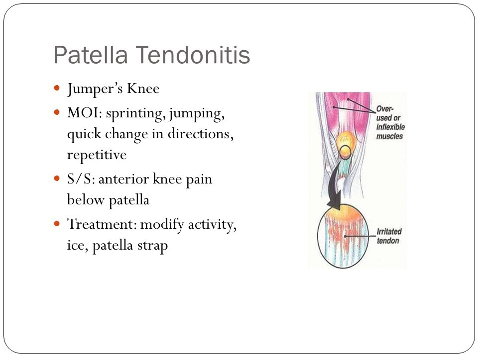 Meniscus Medial meniscus is attached more securely on the back and medial side of the knee.