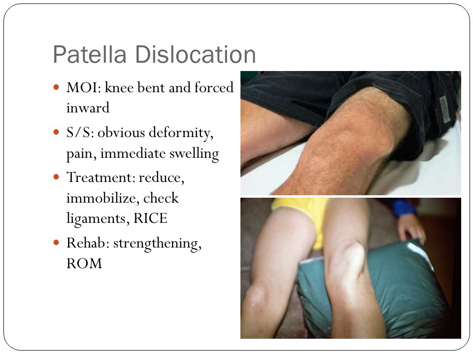 Patella Dislocation MOI: knee bent and forced inward S/S: obvious deformity, pain, immediate swelling Treatment: reduce, immobilize, check ligaments,