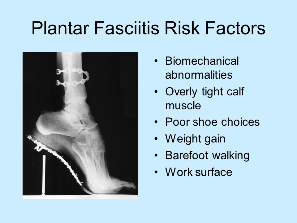 Plantar Fasciitis Risk Factors Biomechanical abnormalities Overly tight calf muscle Poor shoe choices Weight gain Barefoot walking Work surface