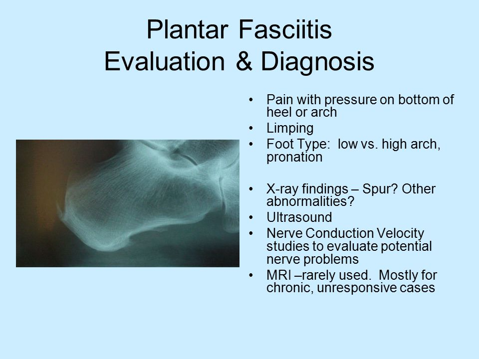 Plantar Fasciitis Treatment Mechanical – treat the cause Anti-inflammatory – treat the pain Neither done in isolation