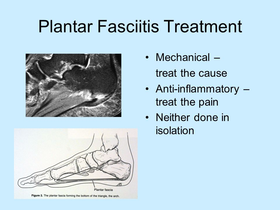 Plantar Fasciitis Treatment Stretching, shoe modifications, avoid walking barefoot Icing and rest Night or resting splint Supplemental arch support (OTC vs.