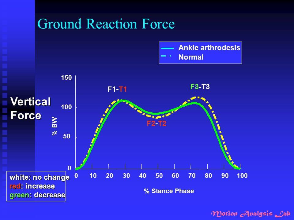 Motion Analysis Lab Ground Reaction Force 0102030405060708090100 0 50 100 150 % Stance Phase % BW F1-T1 F2-T2 F3-T3 Ankle arthrodesis Normal VerticalF