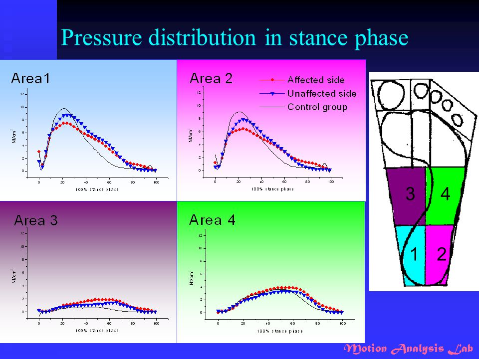 Motion Analysis Lab Pressure distribution in stance phase 12 34