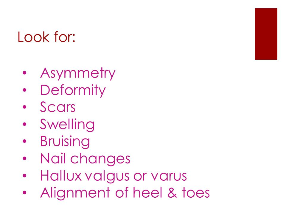 Look for: Asymmetry Deformity Scars Swelling Bruising Nail changes Hallux valgus or varus Alignment of heel & toes