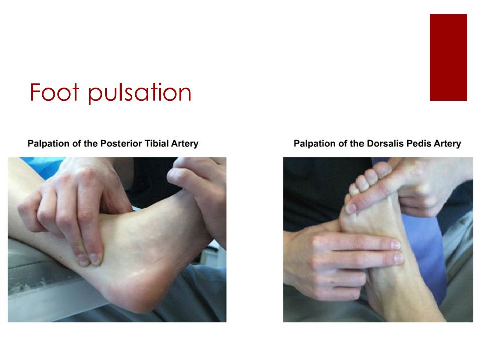 Foot pulsation