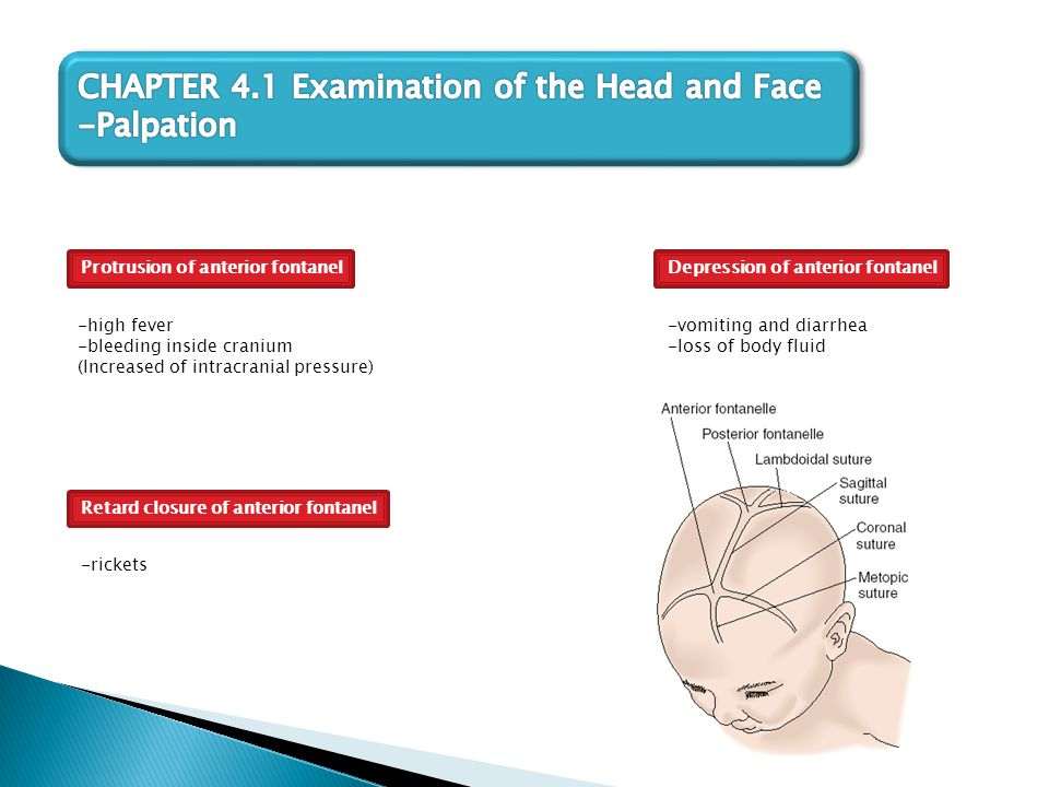 Protrusion of anterior fontanel -high fever -bleeding inside cranium (Increased of intracranial pressure) Retard closure of anterior fontanel Depressi
