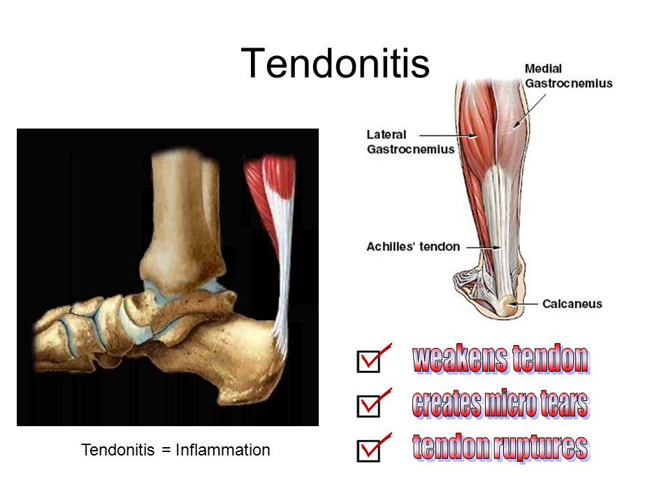 Tendonitis Tendonitis = Inflammation