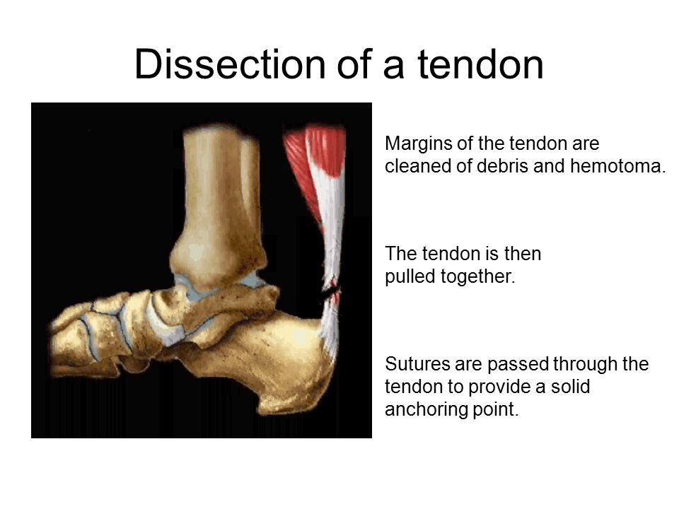 Dissection of a tendon The tendon is then pulled together.