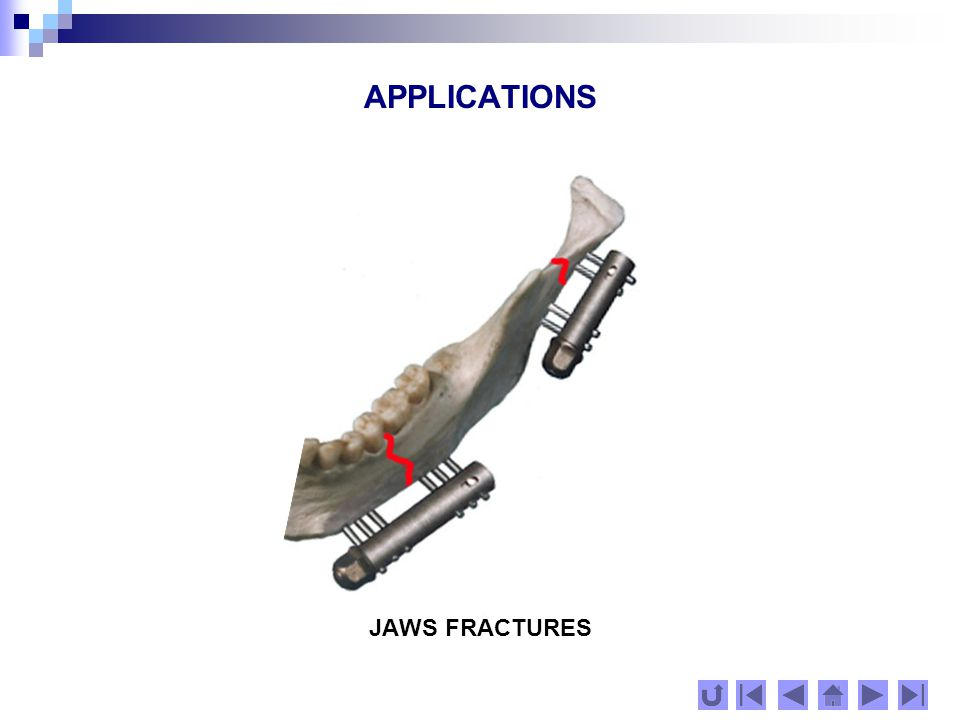 APPLICATIONS JAWS FRACTURES