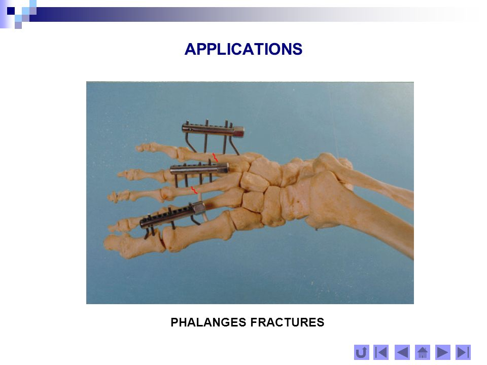 APPLICATIONS PHALANGES FRACTURES