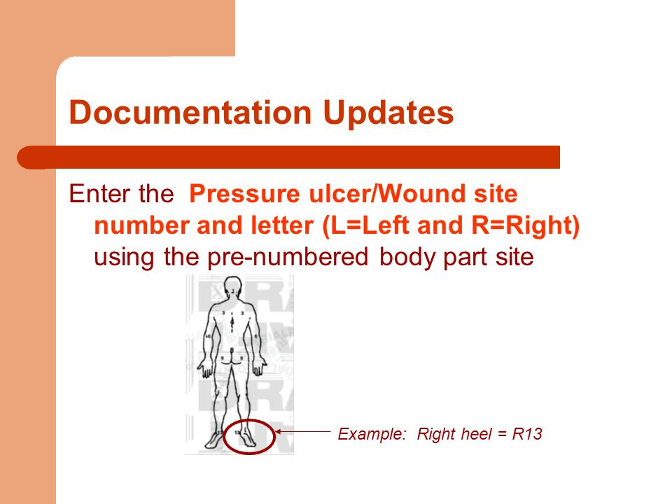 Documentation Updates Enter the Pressure ulcer/Wound site number and letter (L=Left and R=Right) using the pre-numbered body part site Example: Right heel = R13
