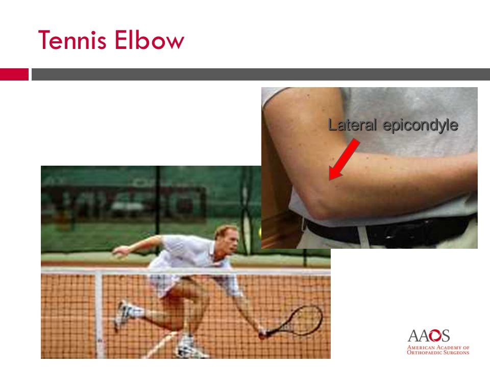 18 Tennis Elbow  Warm up, stretch before play  Correct, maintained equipment  Condition beforehand  Evaluate cause