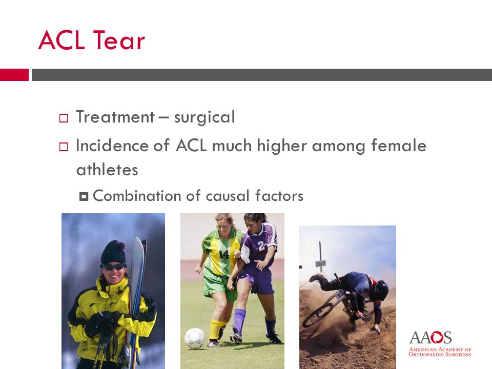 21 ACL Tear  Treatment – surgical  Incidence of ACL much higher among female athletes  Combination of causal factors
