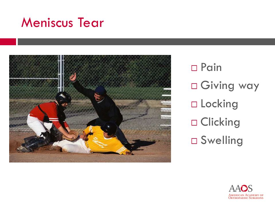 24 Meniscus Tear  Pain  Giving way  Locking  Clicking  Swelling