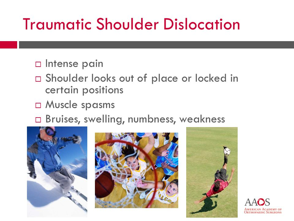28 Traumatic Shoulder Dislocation  Intense pain  Shoulder looks out of place or locked in certain positions  Muscle spasms  Bruises, swelling, num