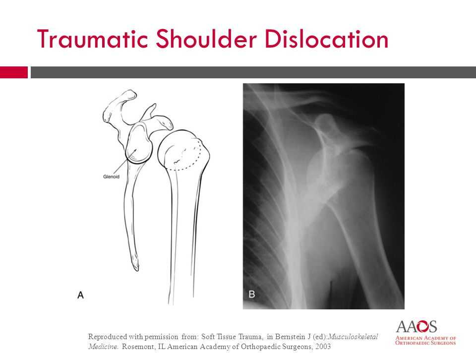 30 Traumatic Shoulder Dislocation  Closed grip pull-downs  Rotation exercises  Resistance exercises  Surgery