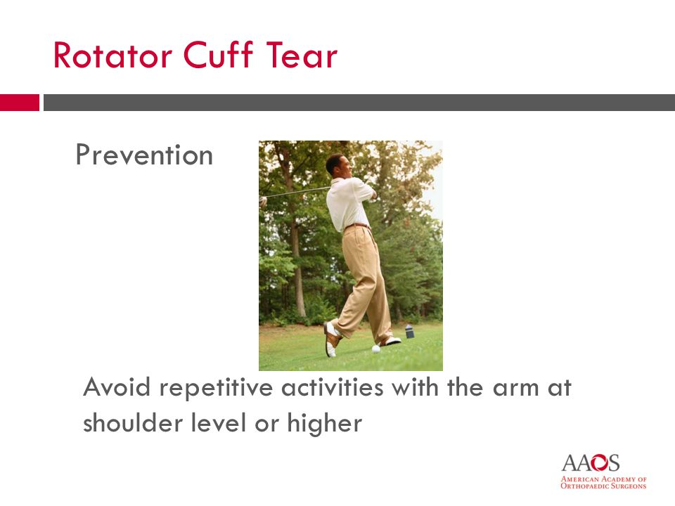 34 Rotator Cuff Tear Prevention Avoid repetitive activities with the arm at shoulder level or higher