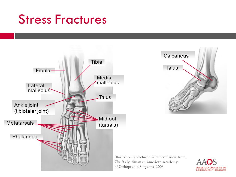 36 Stress Fractures  Micro-cracks  Pain  Overuse