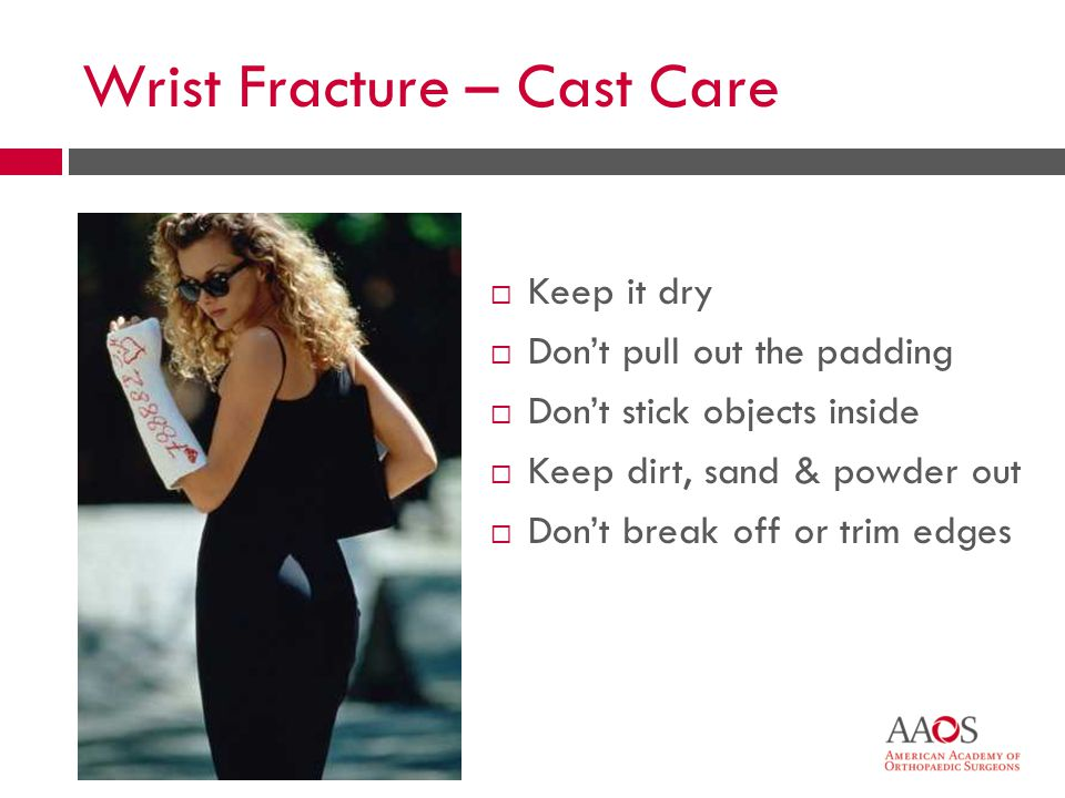 44 Wrist Fracture – Cast Care  Keep it dry  Don't pull out the padding  Don't stick objects inside  Keep dirt, sand & powder out  Don't break off