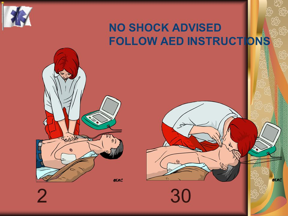 NO SHOCK ADVISED FOLLOW AED INSTRUCTIONS 30 2