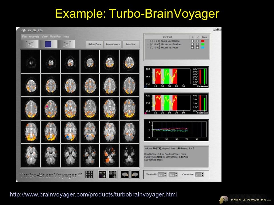 Example: Turbo-BrainVoyager http://www.brainvoyager.com/products/turbobrainvoyager.html