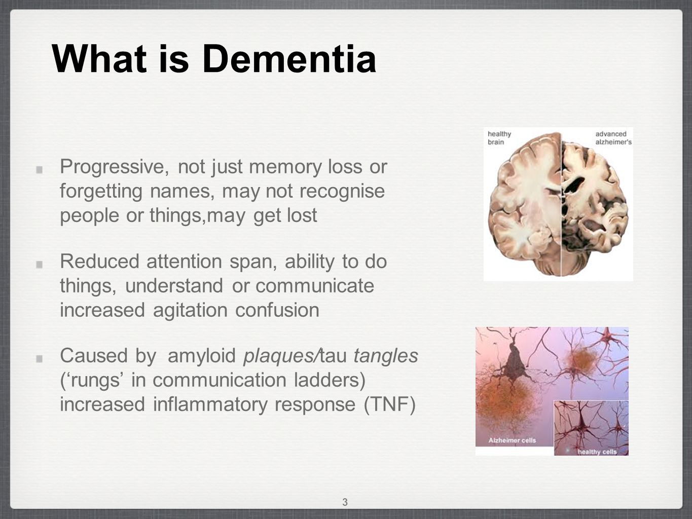 What is Dementia 3 Progressive, not just memory loss or forgetting names, may not recognise people or things,may get lost Reduced attention span, ability to do things, understand or communicate increased agitation confusion Caused by amyloid plaques/tau tangles ('rungs' in communication ladders) increased inflammatory response (TNF)