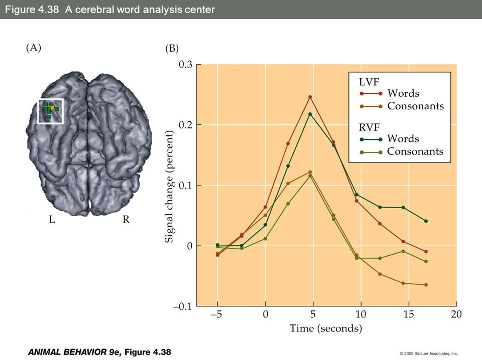 Figure 4.38 A cerebral word analysis center