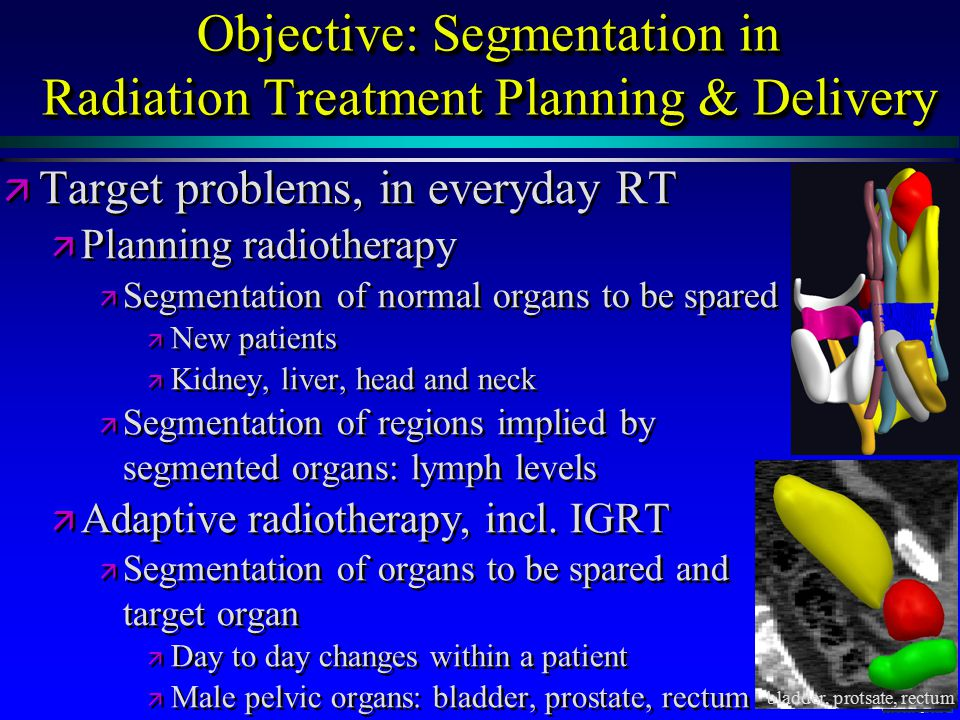 MIDAG@UNC Objective: Segmentation in Radiation Treatment Planning & Delivery ä ä Target problems, in everyday RT ä ä Planning radiotherapy ä ä Segmentation of normal organs to be spared ä ä New patients ä ä Kidney, liver, head and neck ä ä Segmentation of regions implied by segmented organs: lymph levels ä ä Adaptive radiotherapy, incl.