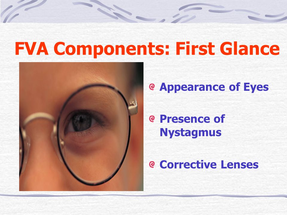 FVA Components: First Glance Appearance of Eyes Presence of Nystagmus Corrective Lenses