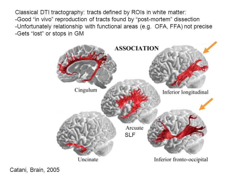 Catani, Brain, 2005 Classical DTI tractography: tracts defined by ROIs in white matter: -Good in vivo reproduction of tracts found by post-mortem dissection -Unfortunately relationship with functional areas (e.g.
