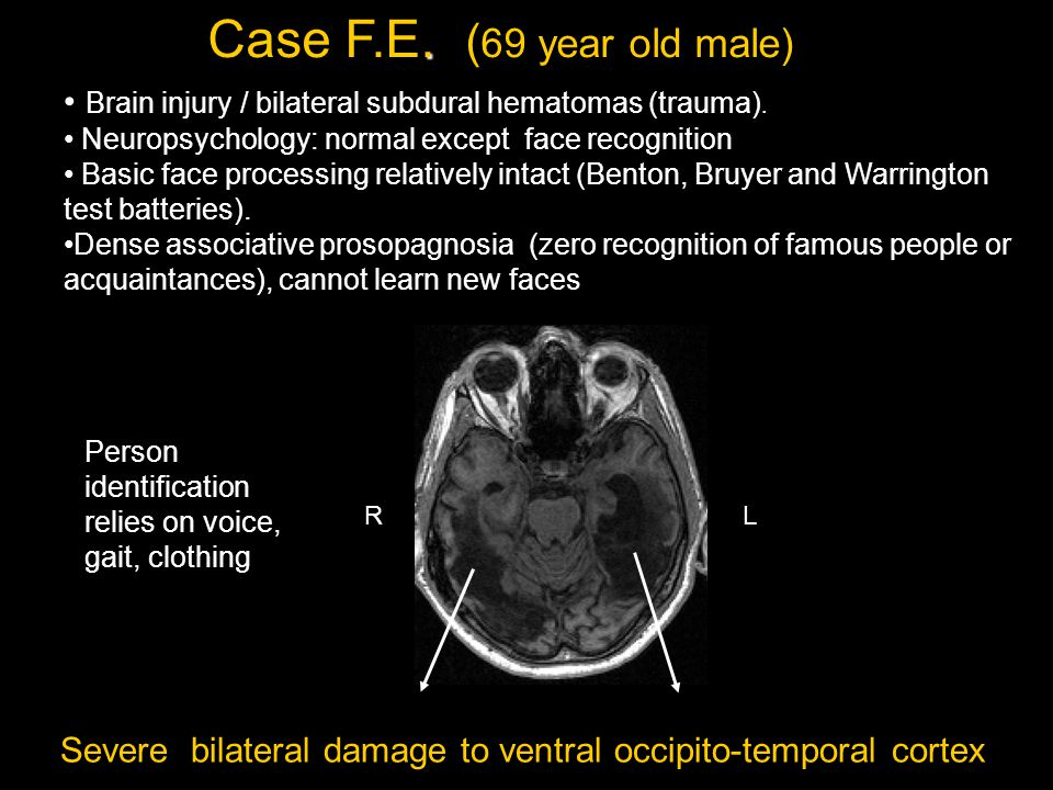 Brain injury / bilateral subdural hematomas (trauma).