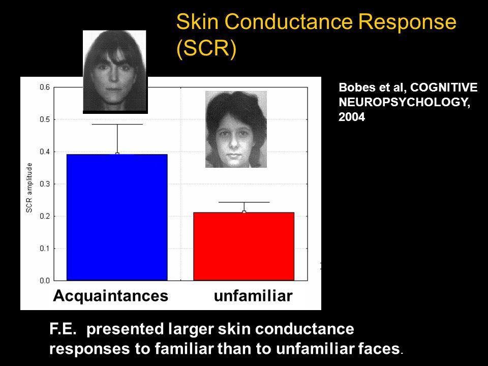 Skin Conductance Response (SCR) F.E.