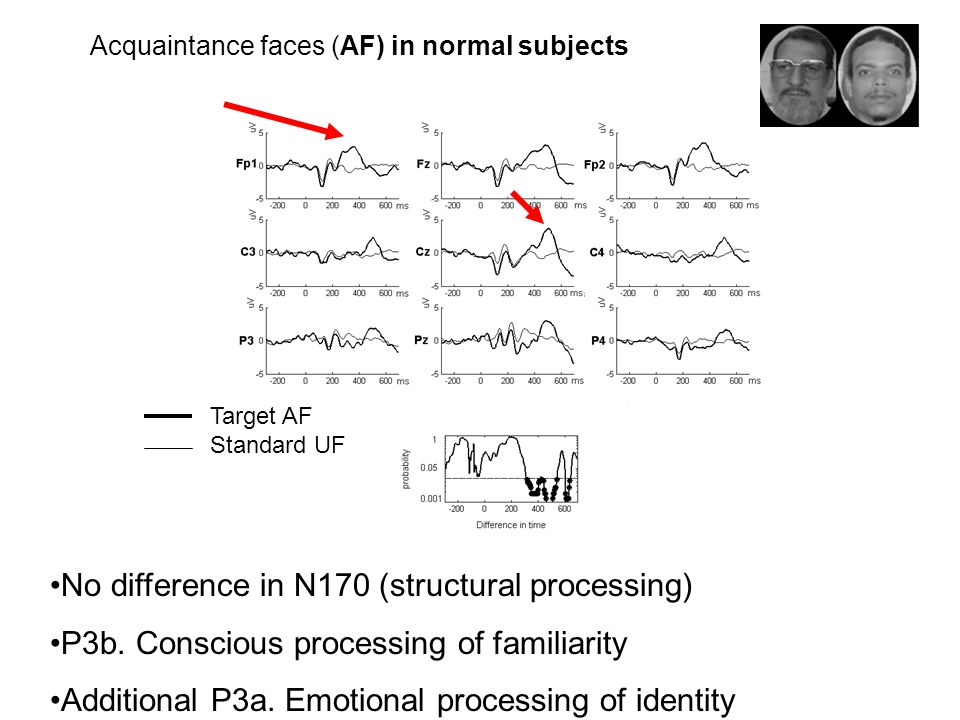 Acquaintance faces (AF) in normal subjects Target AF Standard UF No difference in N170 (structural processing) P3b.