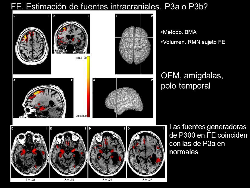 Metodo.BMA Volumen. RMN sujeto FE OFM, amigdalas, polo temporal FE.