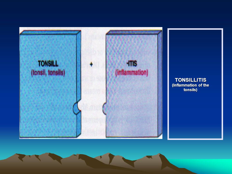 TONSILLITIS (Inflammation of the tonsils)