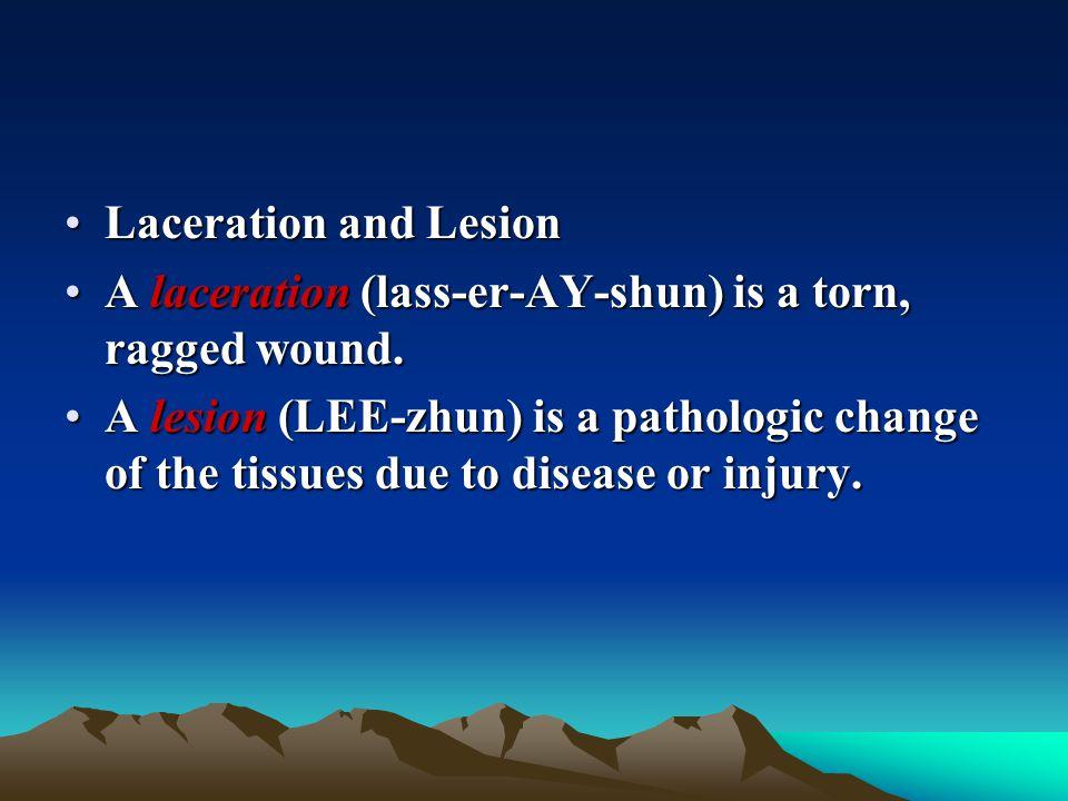 Laceration and LesionLaceration and Lesion A laceration (lass-er-AY-shun) is a torn, ragged wound.A laceration (lass-er-AY-shun) is a torn, ragged wou