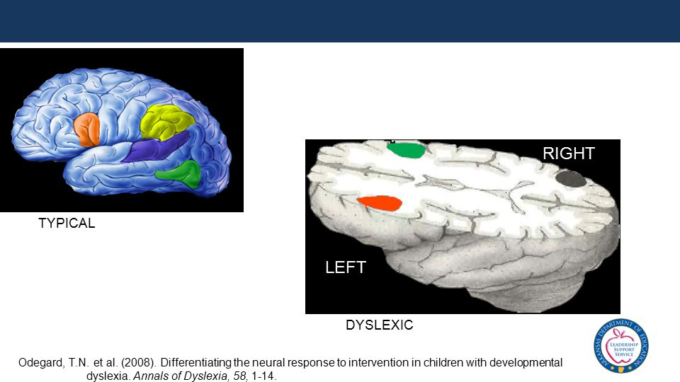 DYSLEXIC LEFT RIGHT Odegard, T.N. et al. (2008). Differentiating the neural response to intervention in children with developmental dyslexia. Annals o