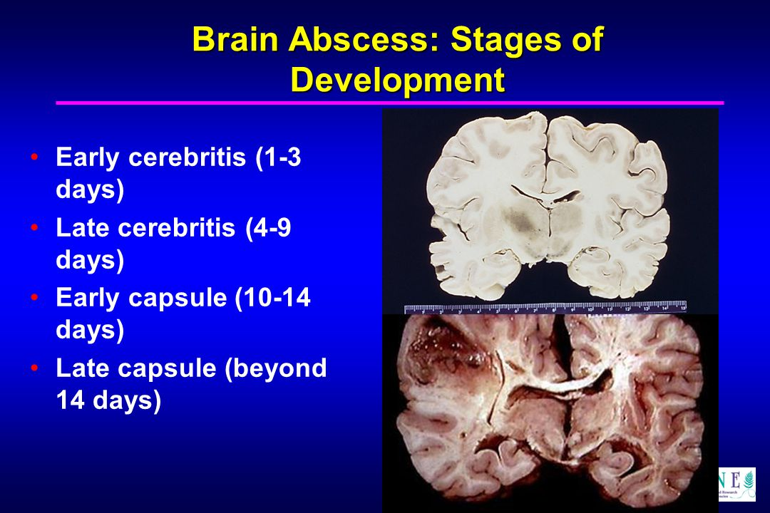 Jonathan A. Edlow, MD Brain Abscess: Stages of Development Early cerebritis (1-3 days) Late cerebritis (4-9 days) Early capsule (10-14 days) Late caps