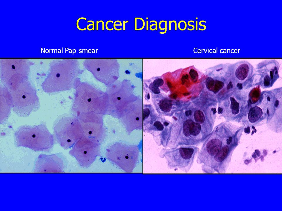 Cancer Diagnosis Normal Pap smearCervical cancer