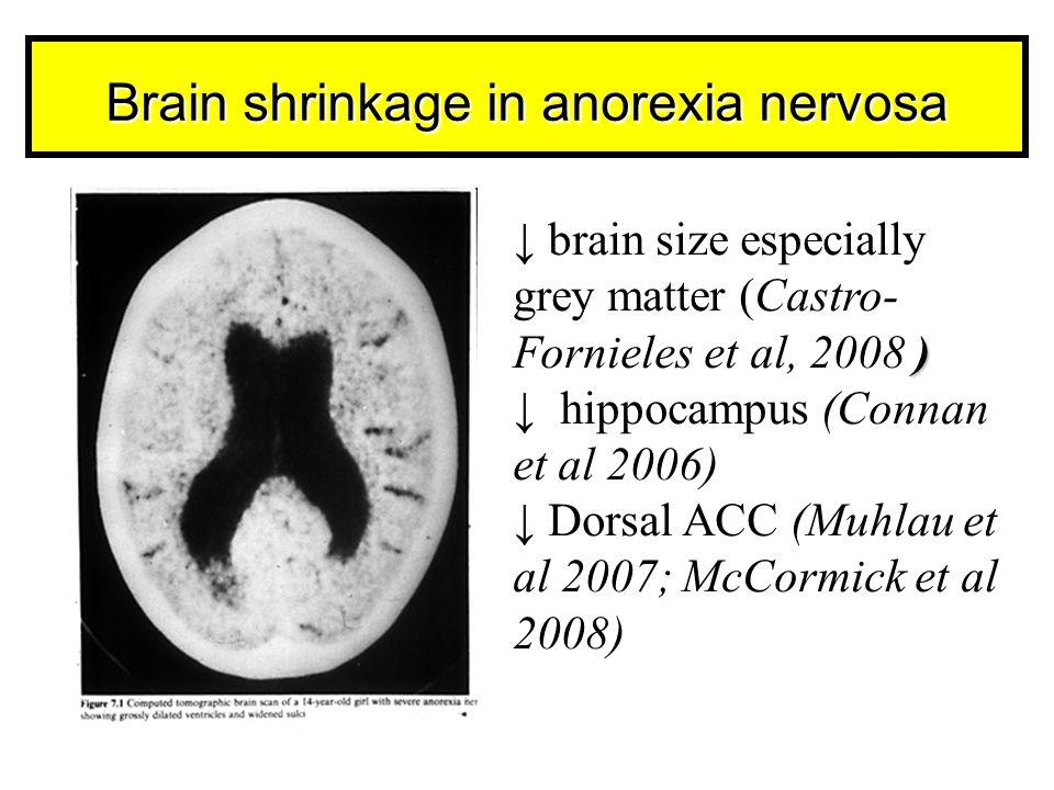 Brain shrinkage in anorexia nervosa ) ↓ brain size especially grey matter (Castro- Fornieles et al, 2008 ) ↓ hippocampus (Connan et al 2006) ↓ Dorsal ACC (Muhlau et al 2007; McCormick et al 2008)
