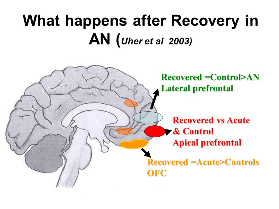 What happens after Recovery in AN ( Uher et al 2003) Recovered vs Acute & Control Apical prefrontal Recovered =Control>AN Lateral prefrontal Recovered