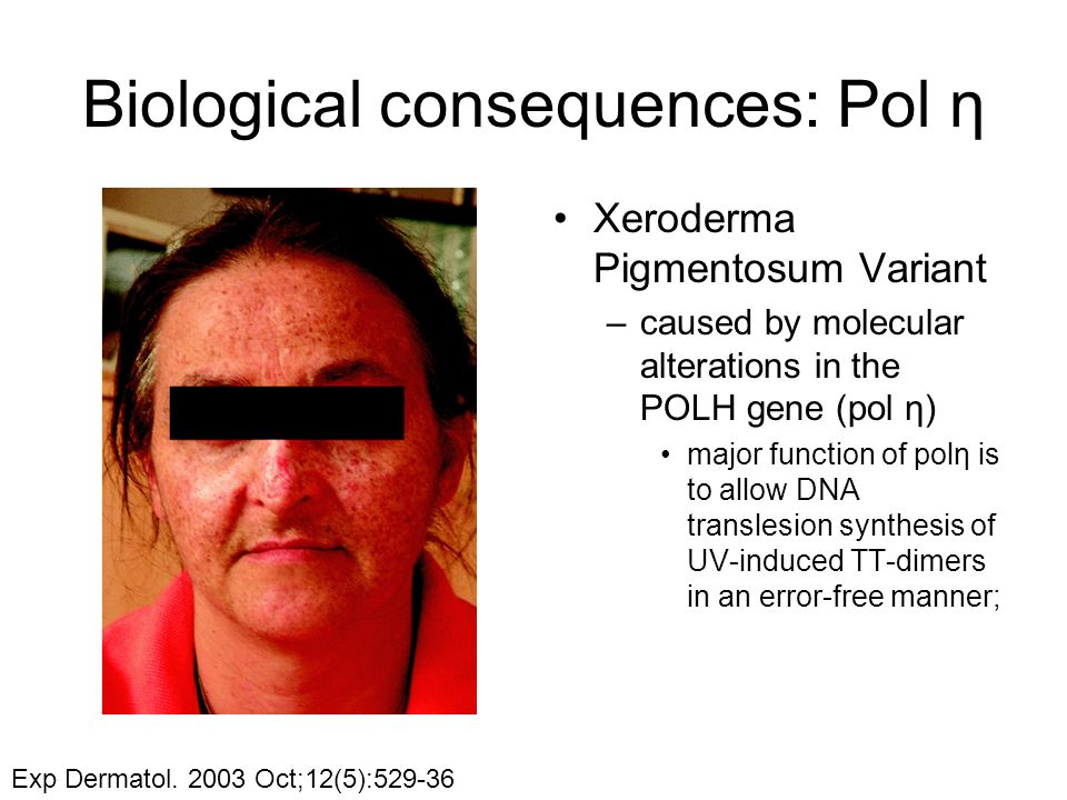 Biological consequences: Pol η Xeroderma Pigmentosum Variant –caused by molecular alterations in the POLH gene (pol η) major function of polη is to allow DNA translesion synthesis of UV-induced TT-dimers in an error-free manner; Exp Dermatol.