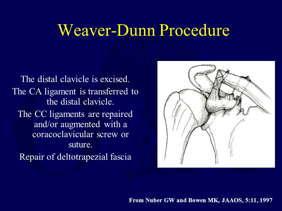 Weaver-Dunn Procedure The distal clavicle is excised. The CA ligament is transferred to the distal clavicle. The CC ligaments are repaired and/or augm