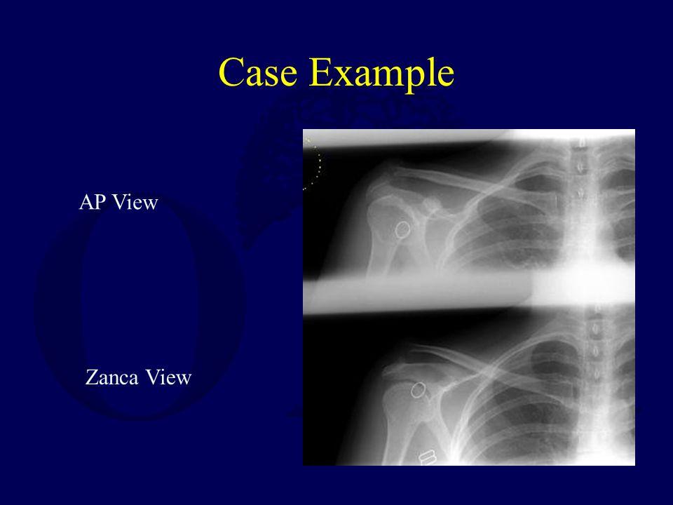 Case Example AP View Zanca View
