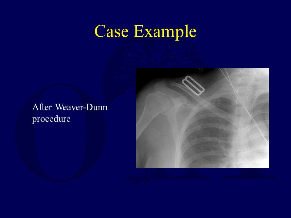 Case Example After Weaver-Dunn procedure
