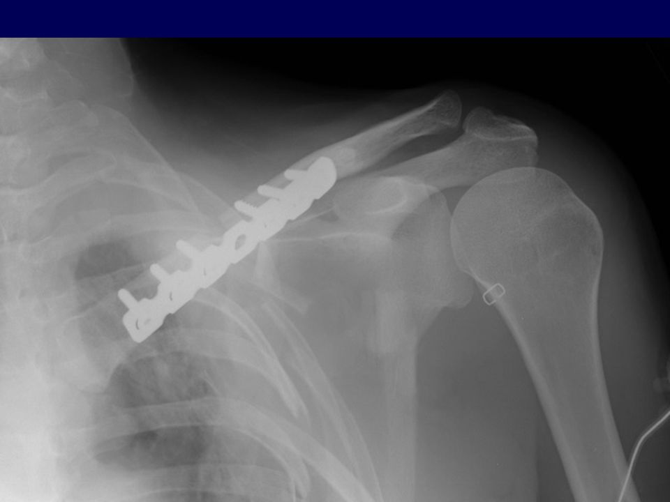 Nonoperative Treatment Compared with Plate Fixation of Displaced Midshaft Clavicular Fractures.